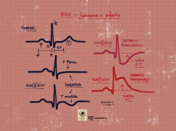 ECG_isquemia_infarto