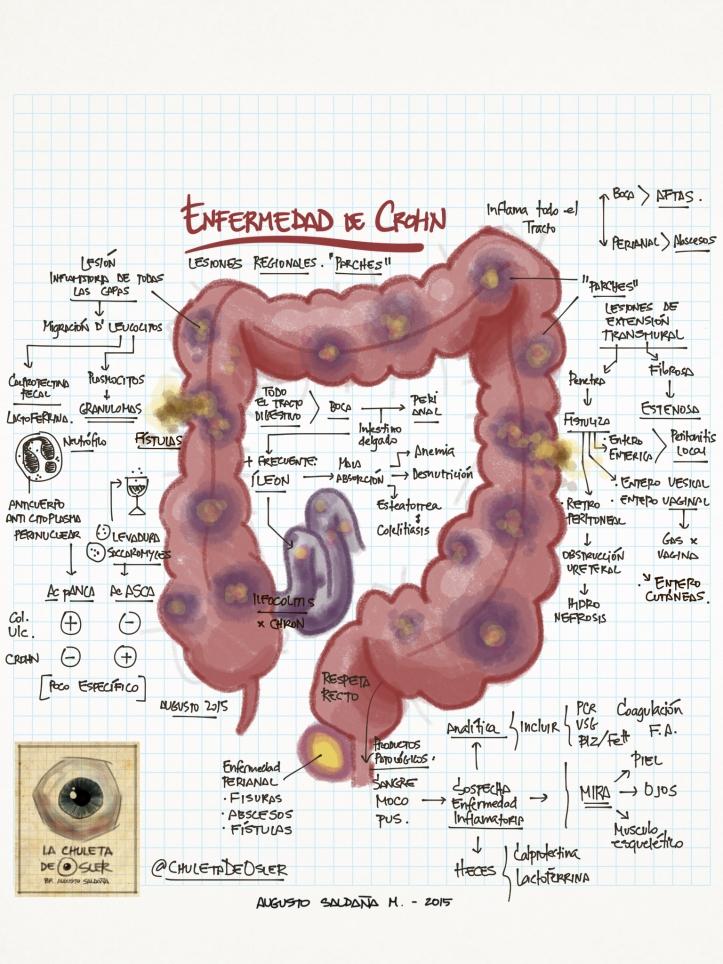 EII_-_enfermedad_de_Crohn