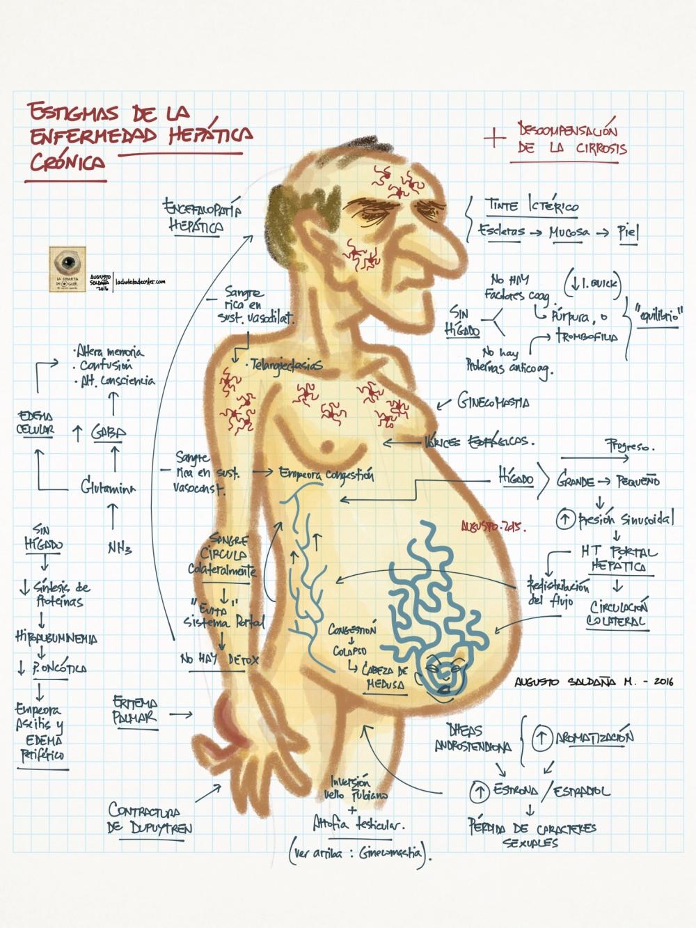 Hepatopatía_crónica