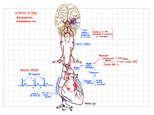 Cardioemb